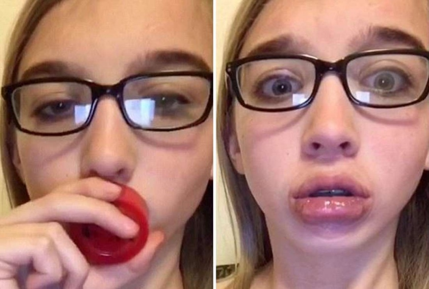 Как увеличит губы в домашних условиях навсегда