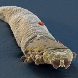 Прямо сейчас на вашем лице живут колонии микроскопических паучков, даже если вы только что приняли душ!
