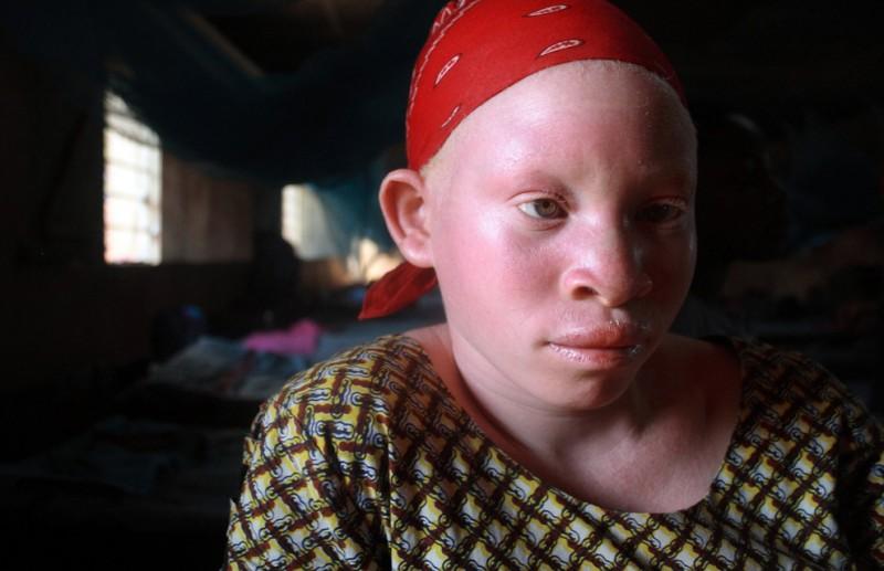 1) Танзанийская девочка-подросток  сидит в женском общежитии государственной школы для инвалидов в Кабанге, населенном пункте на западе страны близ города Кигому на озере Танганьика, 5 июня 2009. В школу начали принимать детей-альбиносов с конца прошлого года, после того, как в Танзании и соседней Бурунди начали убивать альбиносов с целью использования частей их тел в колдовских ритуалах. (REUTERS/Alex Wynter/IFRC/Handout)