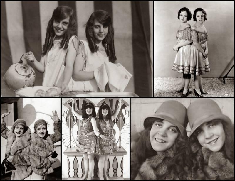 Жизнь сиамских близнецов Дейзи и Виолетты Хилтон