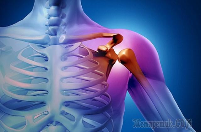 Рак кости: 5 симптомов, о которых вы должны знать!
