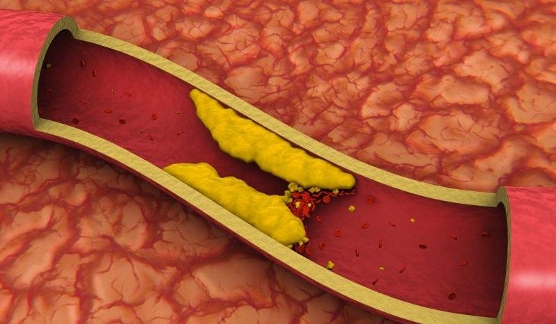 О заблуждениях. Почему не надо бояться холестерина