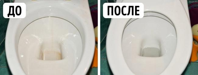 унитаз