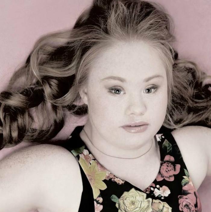 Познакомиться с девушкой с синдромом дауна дома знакомства