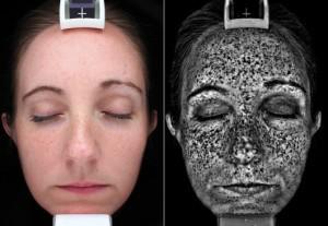 2. Миф: Лёгкий загар защищает от дальнейшего поражения кожи безопасность, загар, лето, солнце