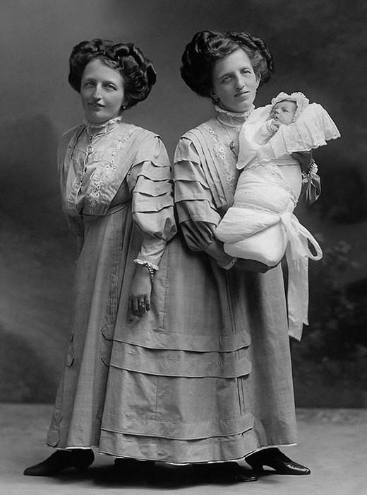 Удивительные истории о сиамских близнецах, у которых все в жизни сложилось хорошо