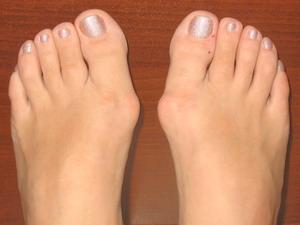 Лечение «косточек» на ногах народными средствами