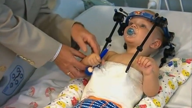 Настоящее чудо: медики спасли малыша, которому оторвало голову в ДТП