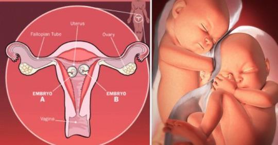 Зачатие близнецов естественным способом: руководство
