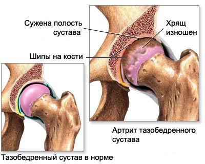Мантры при артрите