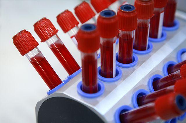 Болезнь или норма? О чем расскажет общий анализ крови