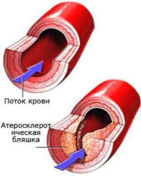 Для профилактики атеросклероза