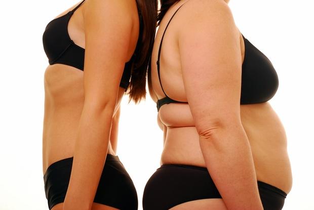 Специалисты настаивают: липосакция - это не метод лечения ожирения и борьбы с лишним весом!