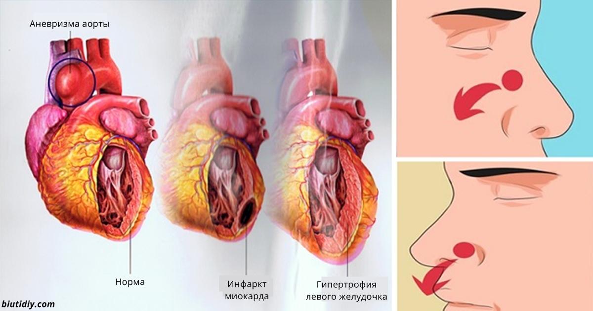 9 опасных симптомов высокого давления, которые ни в коем случае нельзя игнорировать