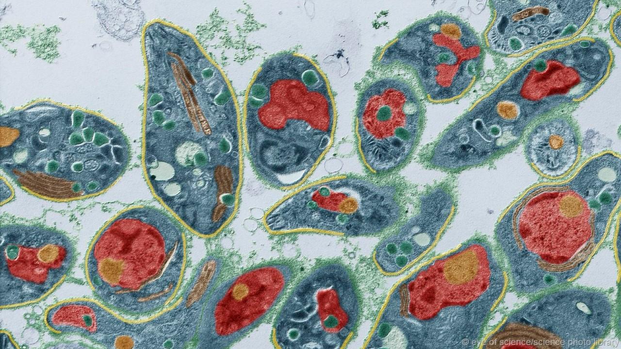 Токсоплаза вирус, мозг, паразиты