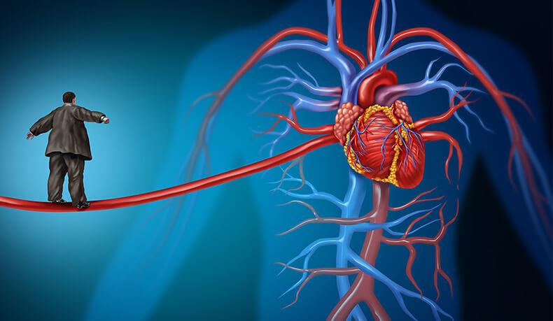 Оцените свой риск смерти от сердечно-сосудистого заболевания