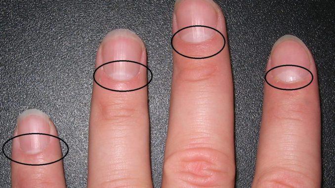 Вы знаете, что на самом деле означает форма полумесяца на ваших ногтях? Ответ более важен, чем вы думаете