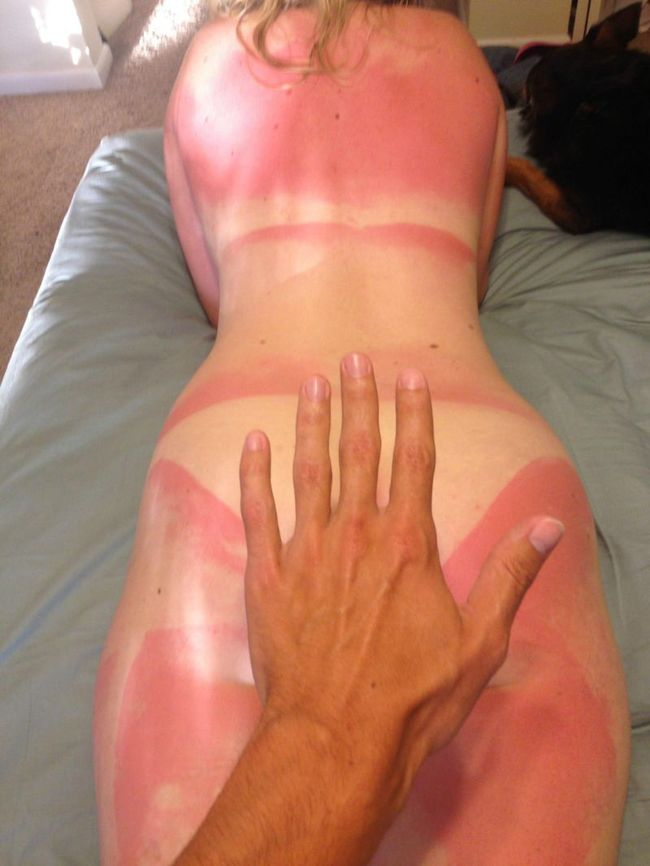 Сильно обгорела на солнце беременная 71
