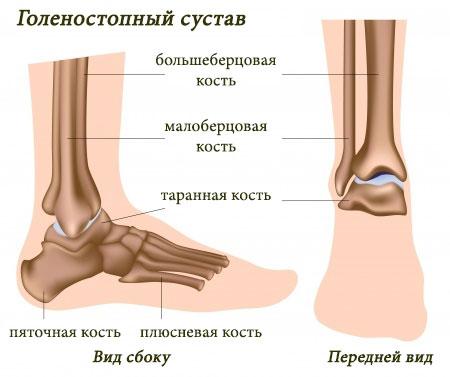 Если болит голеностопный сустав что делать как лечить