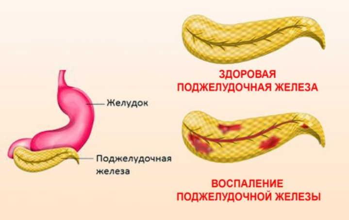 Случай излечения воспаления поджелудочной железы при помощи бархатцев и золотого уса