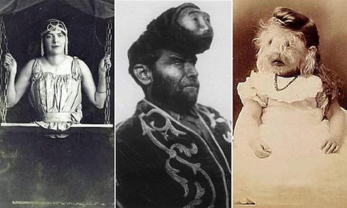 Звезды фрик-шоу — герои шоу-бизнеса столетней давности (13 фото)