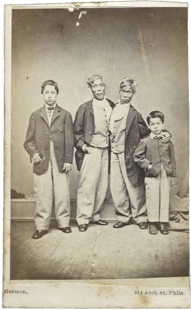 Удивительные истории о сиамских близнецах, у которых все в жизни сложилось хорошо в мире, жизнь, история, люди, медицина, познавательно, сиамские близнецы