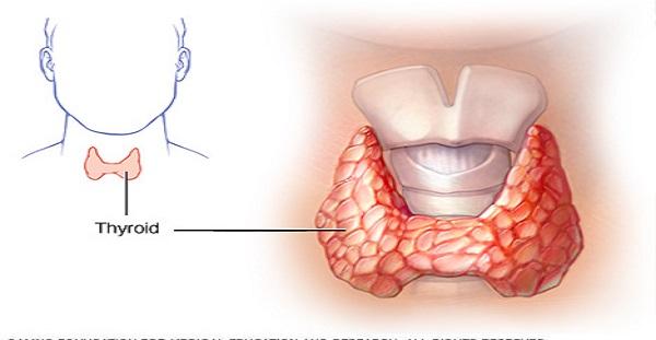 Как вылечить щитовидную железу