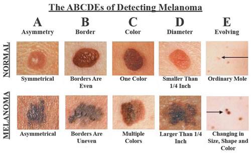 3. Миф: Большинство случаев рака кожи не опасны. безопасность, загар, лето, солнце