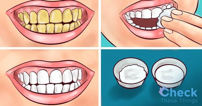 Гарантировано. Отбелите свои желтые зубы менее чем за 2 минуты