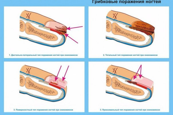 Как лечить грибок на ногте большого пальца ноги лечение