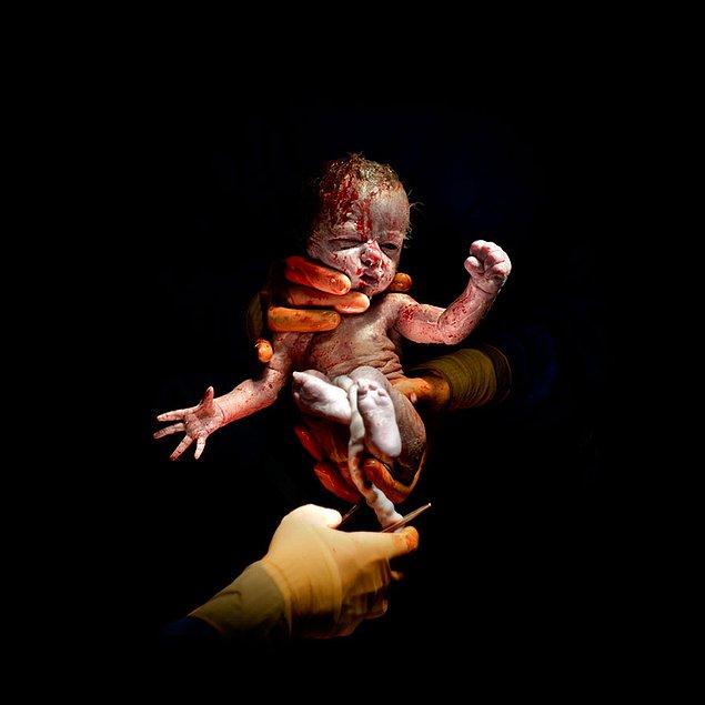 Фотографии детей в первые секунды после рождения, мужчинам не смотреть.
