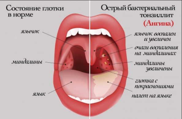 Летняя ангина: как быстро вылечиться в жару  без антибиотиков и восстановиться. Эффективно и безвредно