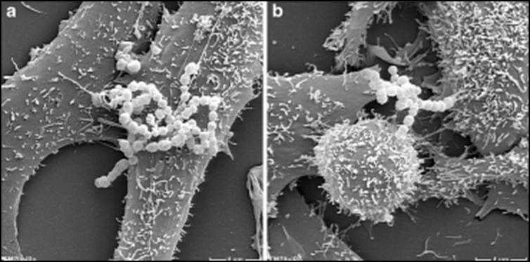 Электронная микрофотография (Linnebacher). Адгезия бета-гемолитического стрептококка на поверхности двух типов раковых клеток. Бактериальная адгезия – это первый шаг к инфицированию опухоли и началу онколизиса