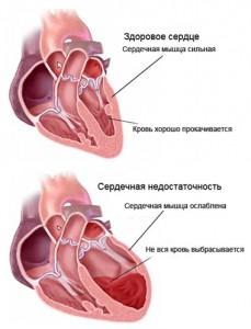 Первая помощь и лечение сердечной недостаточности в домашних условиях