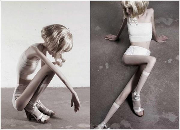 «32 килограмма». Фотопроект, посвященный анорексии