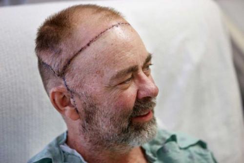 Самые невероятные операции на голове человека. 18+