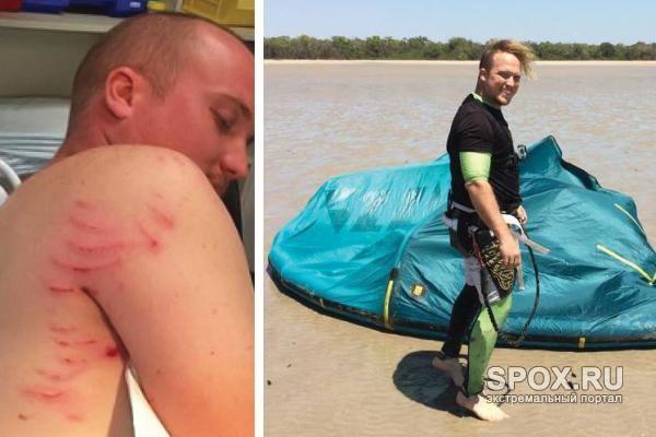 Австралийский кайтбордер отбился от крокодила доской (ФОТО)