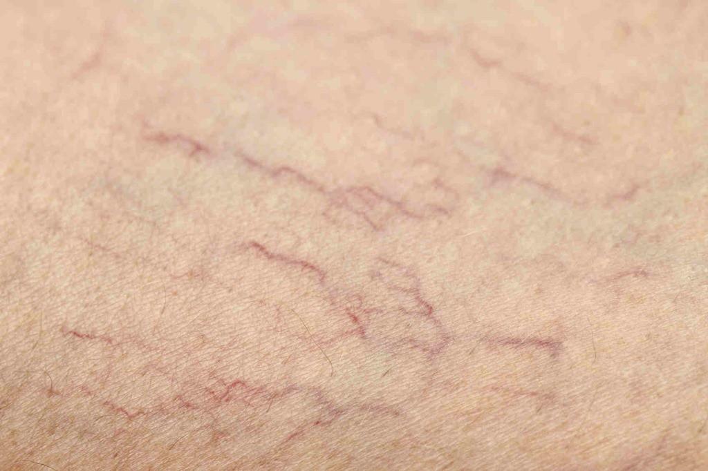 Синеватые пятна болезнь, организм