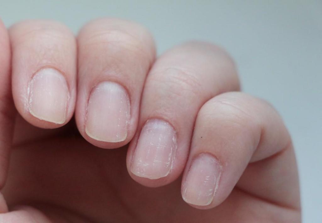 Продольные бороздки на ногте болезнь, организм