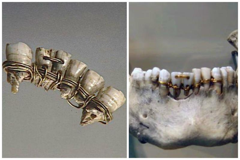 Вы все еще боитесь современных стоматологов? Тогда мы идем к вам! интересное, прошлое, стоматологи, ужас, факты
