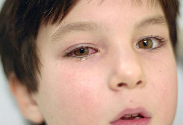 Травматический конъюнктивит от удара в глаз
