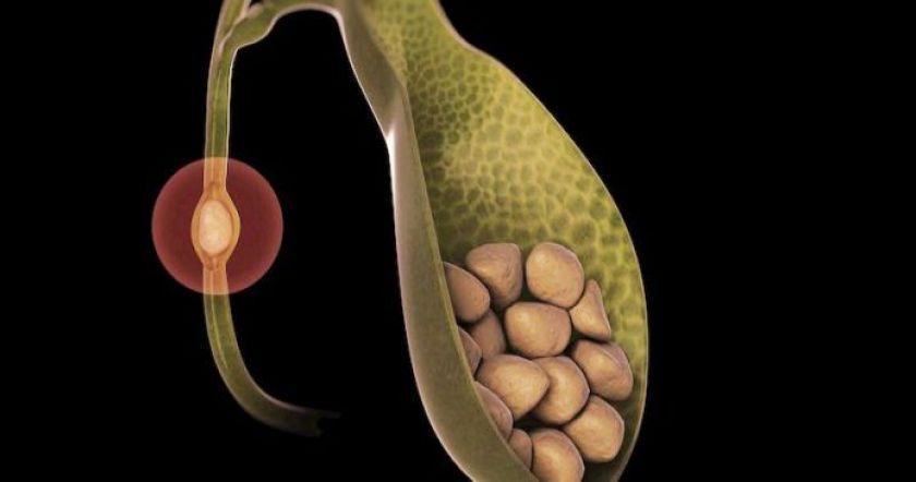 Картинки по запроÑу 6 продуктов-защитников от желчекаменной болезни