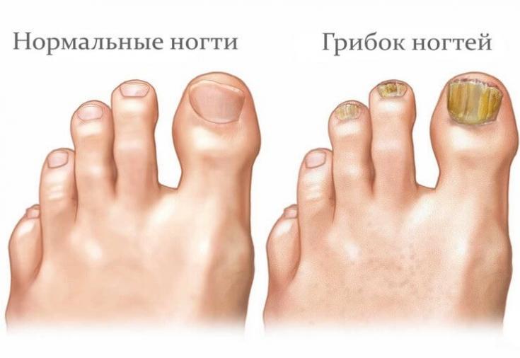 Народная медицина от грибка ногтей