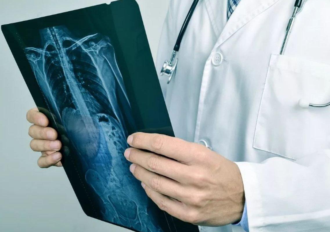 снимок легких в руках врача