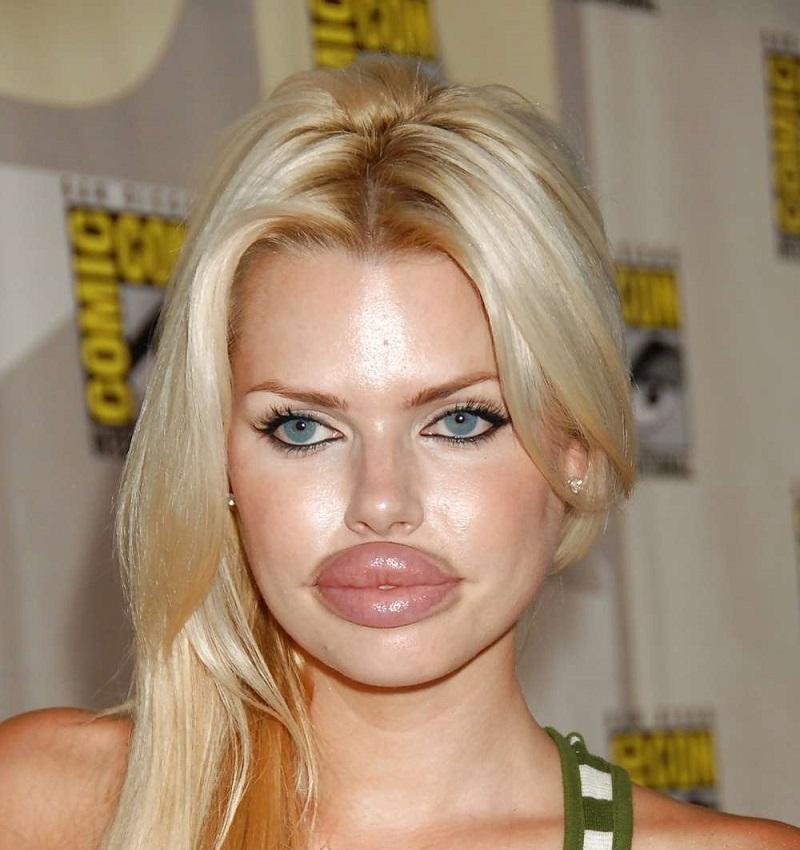 Почему нельзя увеличивать губы
