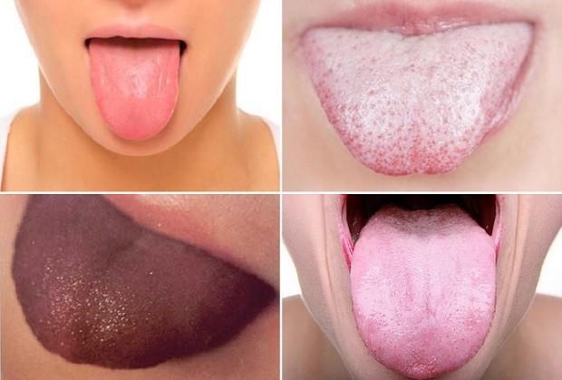 желтый налет на языке запах изо рта