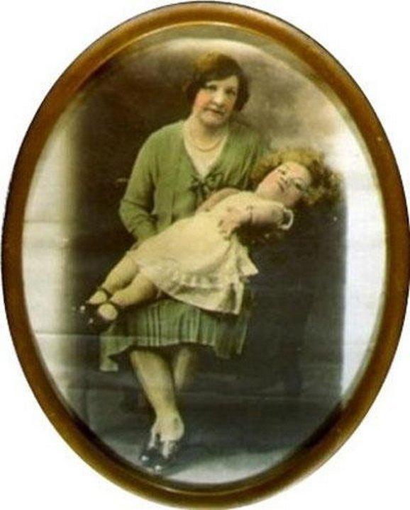 Женщина младенец. «Цирк уродов»: Страшное зрелище (фото)