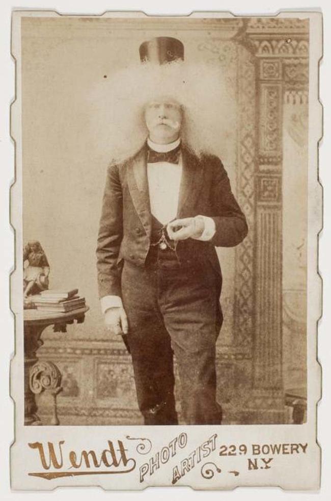 Альбинос Венди. интересное, прошлое, фото, цирк