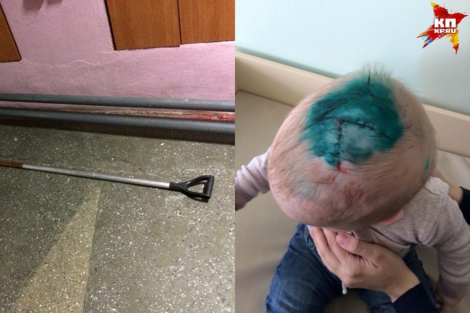 В Новосибирске подростки разбили младенцу голову лопатой, отцу ребенка грозит уголовное дело