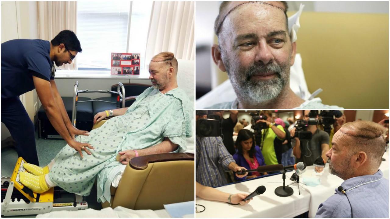 Триумф трансплантологии: невообразимые операции по пересадке органов